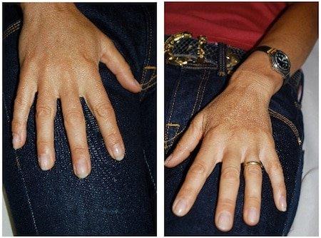 rejuvenation of hands