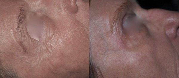 Zona occhi prima e dopo il trattamento con tossina botulinica