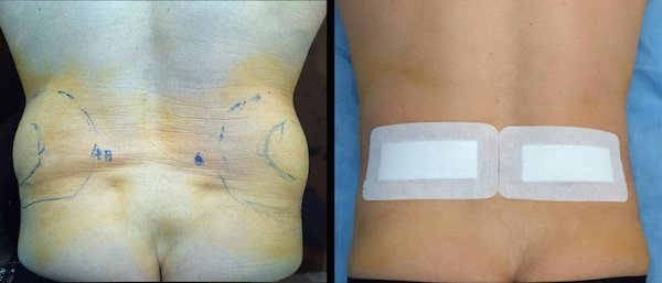 liposcultura fianchi prima e dopo