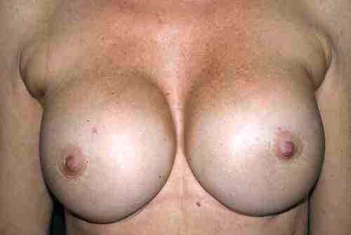 1. Prima del trattamento: come si presentano le protesi mammarie.