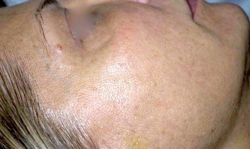 biostimolazione dopo dx
