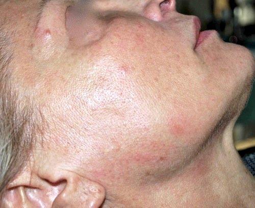 biostimolazione prima dx