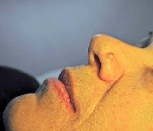 Ala naso prima