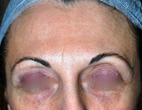 Botox prima