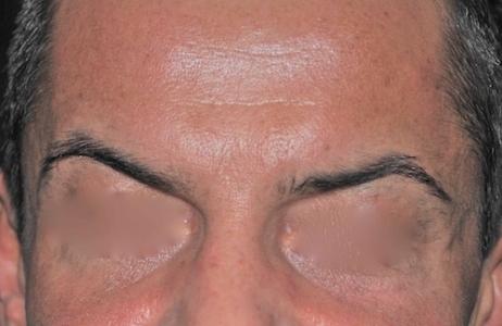 Botox dopo