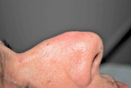 Fibroma naso dopo 1