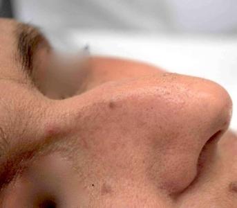 Fibroma naso dopo 2