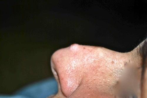 Fibroma naso prima sx