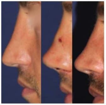 sollevamento-naso