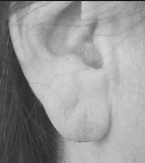 rottura lobo orecchio 3