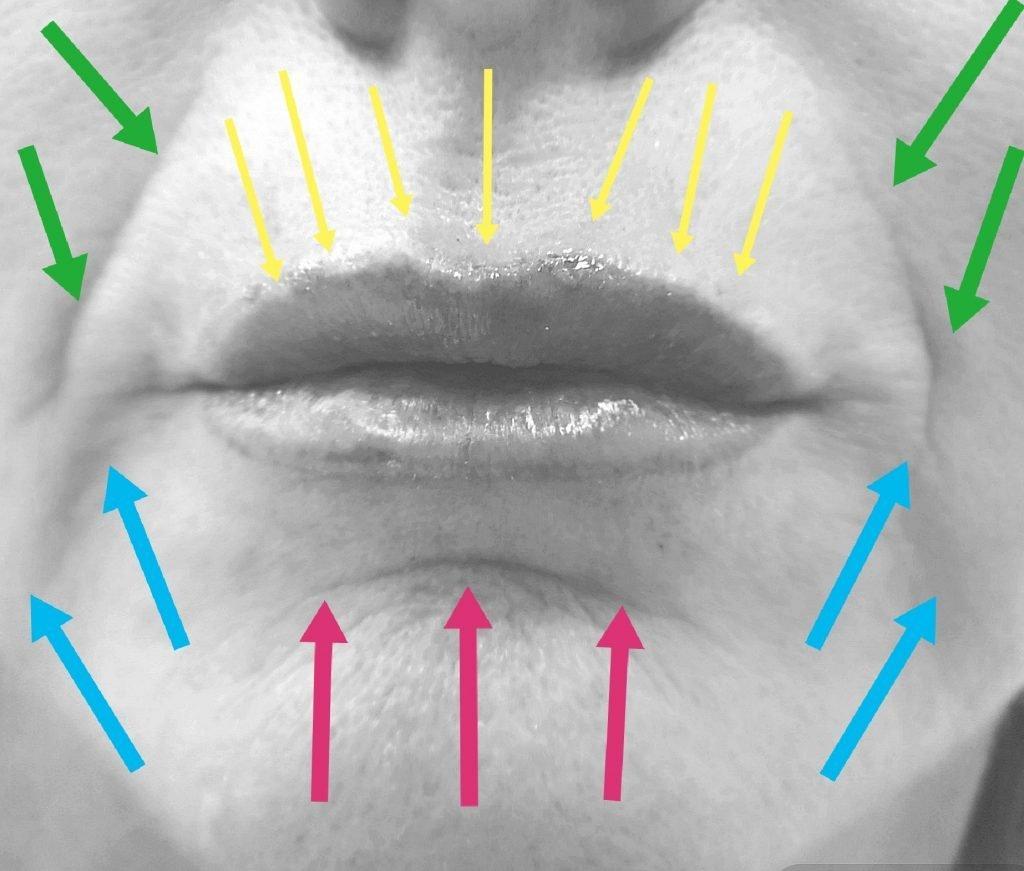 rughe naso gniene trattamento
