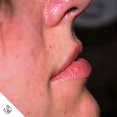 Aumento delle Labbra AA 01