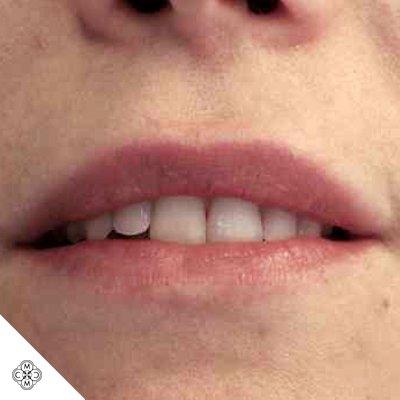Aumento delle Labbra BB 01