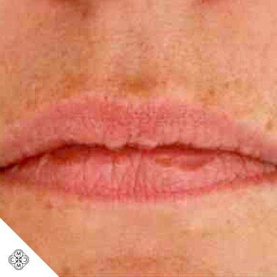 Aumento delle Labbra CC 01
