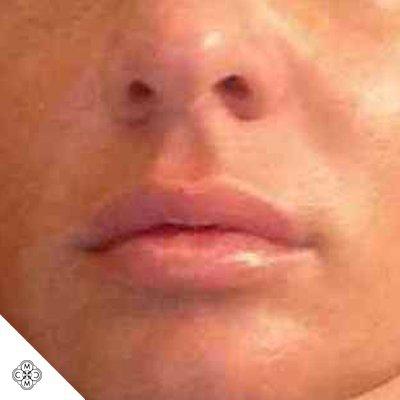 Aumento delle Labbra DD 02