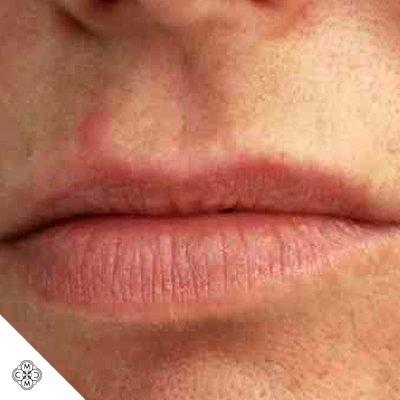 Aumento delle Labbra EE 01