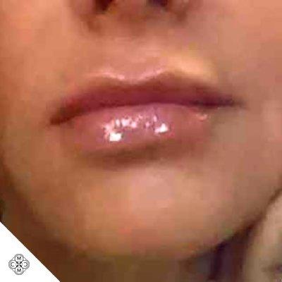 Aumento delle Labbra EE 02