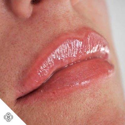Aumento delle Labbra GG 02