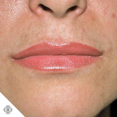 Aumento delle Labbra HH 02