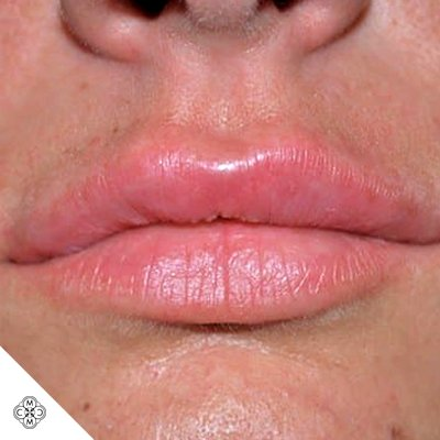 Aumento delle Labbra II 02