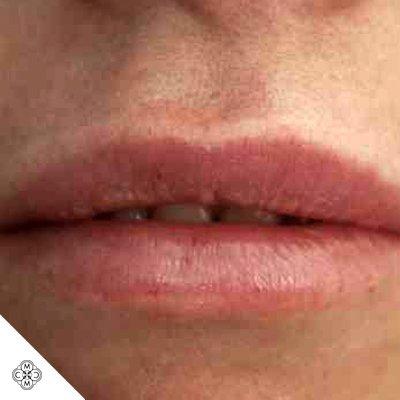 Aumento delle Labbra JJ 01