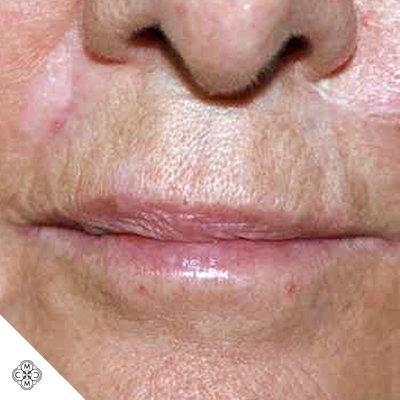 Aumento delle Labbra LL 01