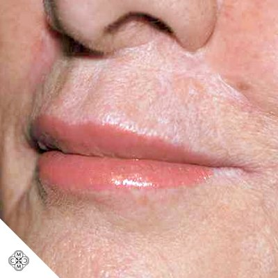 Aumento delle Labbra LL 02
