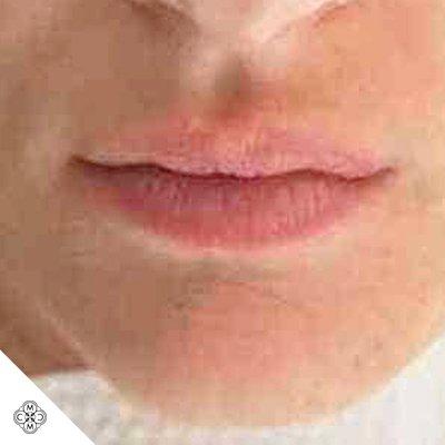 Aumento delle Labbra MM 01