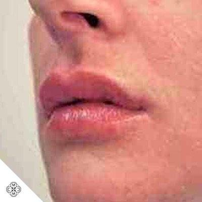 Aumento delle Labbra MM 02