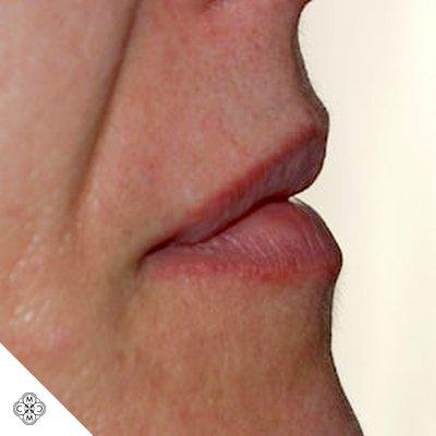 Aumento delle Labbra NN 01