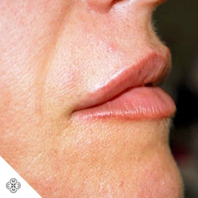Aumento delle Labbra NN 02