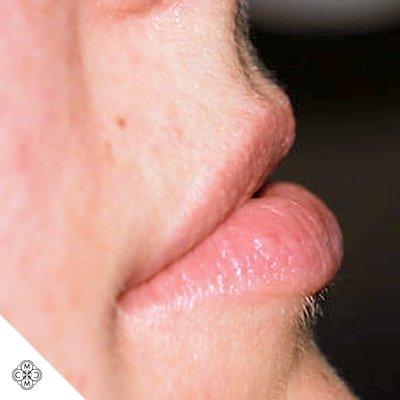 Aumento delle Labbra OO 01