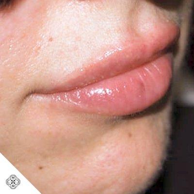 Aumento delle Labbra OO 02