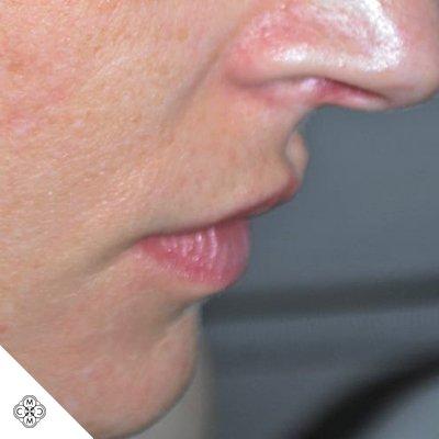 Aumento delle Labbra PP 01