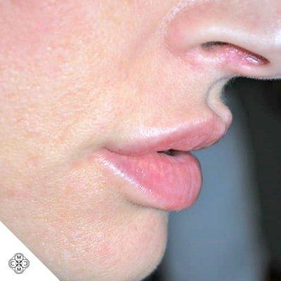 Aumento delle Labbra PP 02