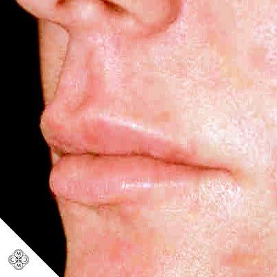 Aumento delle Labbra QQ 02