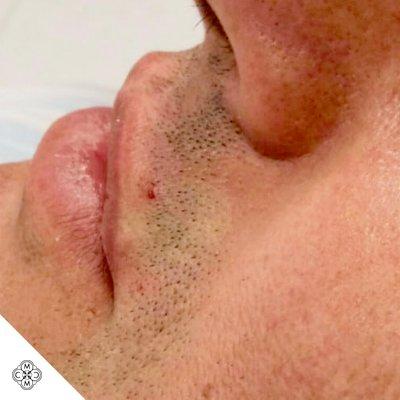 Aumento delle Labbra SS 02
