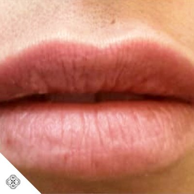 Aumento delle Labbra TT 02