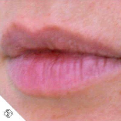 Aumento delle Labbra VV 01