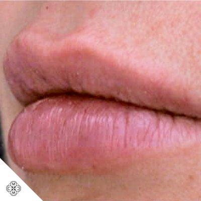 Aumento delle Labbra VV 02
