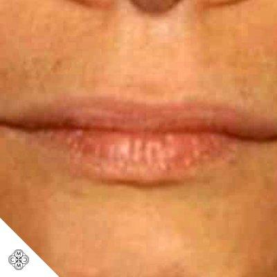 Aumento delle Labbra WW 01