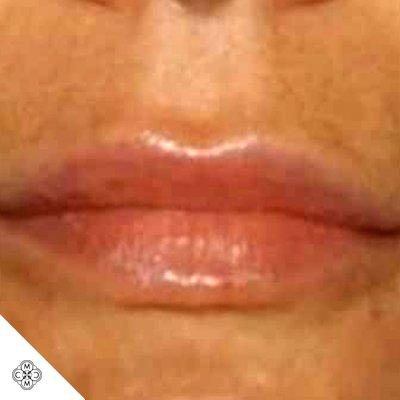 Aumento delle Labbra WW 02