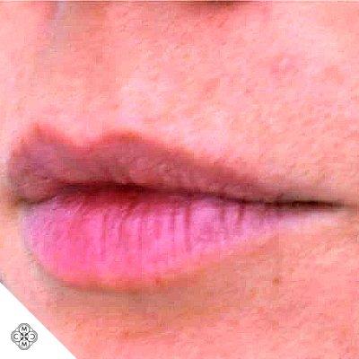 Aumento delle Labbra XX 01