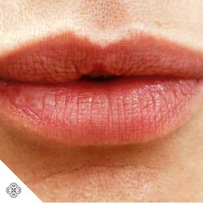 Aumento delle Labbra YY 01