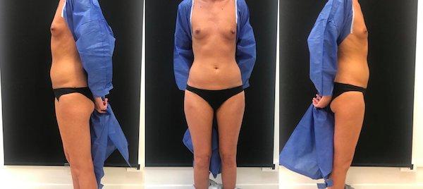 prima l'aumento del seno con idrogel