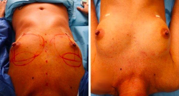 prima e dopo l'aumento del seno con idrogel