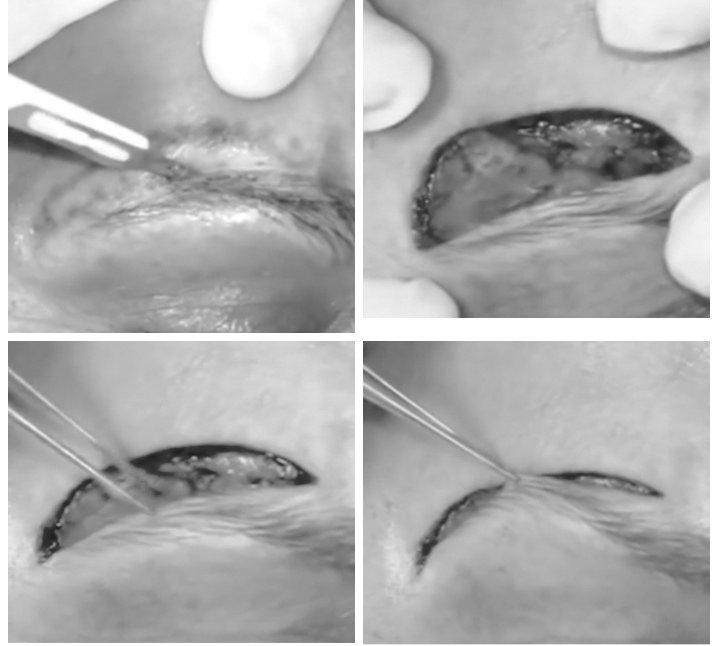 chirurgia lifting del sopracciglio