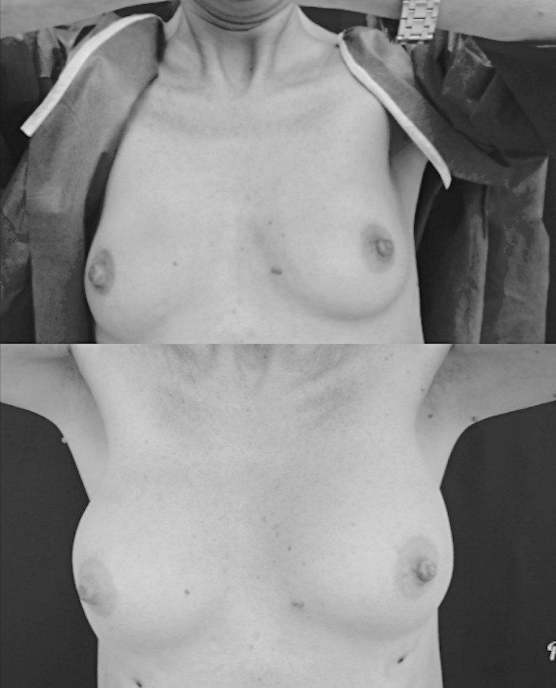 paziente di anni 50 idrogel 1