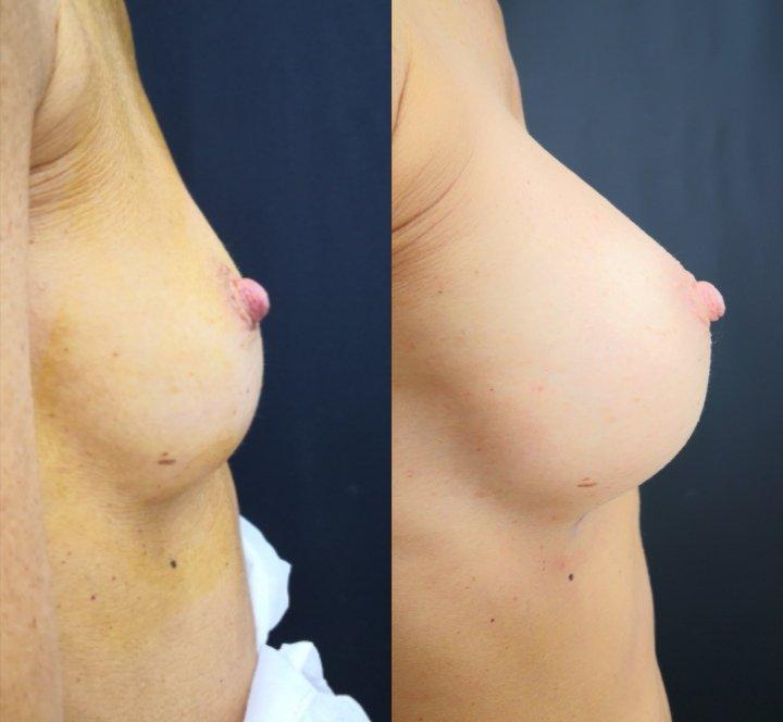 Un seno perfetto 1