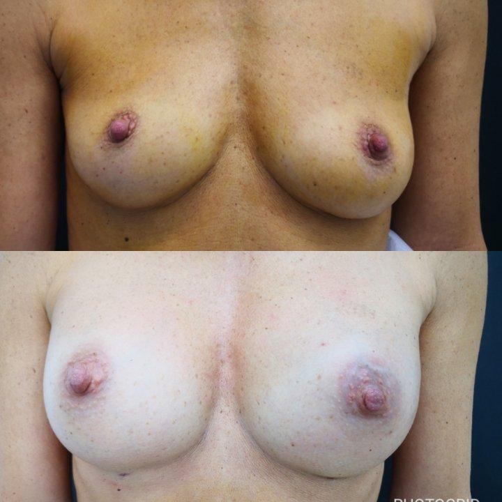 Un seno perfetto 2